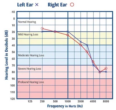 hearing assessment result